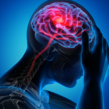 Turning the Tide: Microelectronics to Revolutionize Stroke Treatment